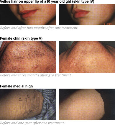 Painless Laserlight Permanenet Hair Removal Reduction Prices